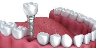 Beneficiile celei mai moderne si eficiente metode de inlocuire a dintilor – implantul dentar, Charmy
