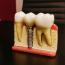 Apelează la un cabinet stomatologic în Braşov pentru un implant dentar care te va ţine  o viaţă