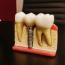 Ce este implantul dentar fast and fixed într-o zi şi când se recomanda?