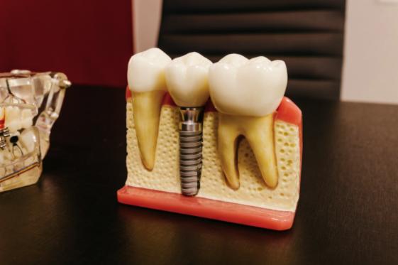 Ce este implantul dentar fast and fixed într-o zi şi când se recomanda?, Charmy